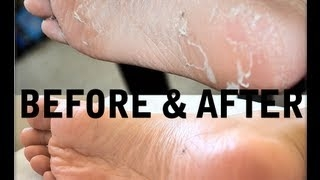How to Get Rid of Cracked, Dry, Stinky FEET! Baby Foot Review! (Before&After) AprilAthena7 Dried out feet from baby foot